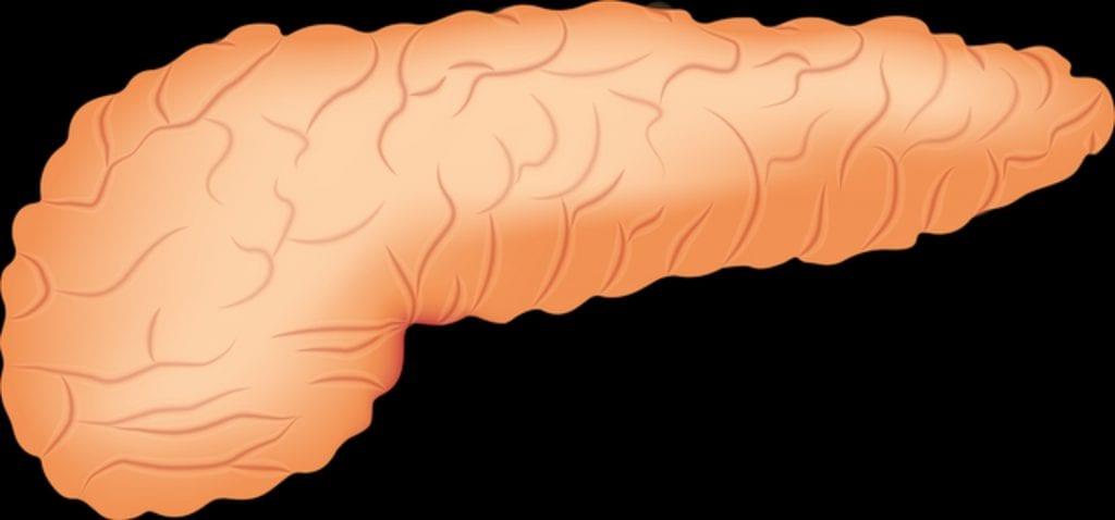 Pancreatitis Aguda – Esquemas